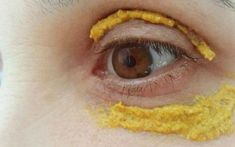 There are wide range of natural remedies for treating skin issues and improving the skin quality. One of the most powerful and natural remedies which can be used for the skin is turmeric. Turmeric is an amazing spice which has … Diy Beauty, Beauty Hacks, Eye Sight Improvement, Piel Natural, Vision Eye, Les Rides, Skin Tag, Natural Herbs, Tips Belleza