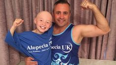 Steve Grant will tackle the Simplyhealth Great South Run in support of his daughter who has  #Alopecia http://po.st/UA8uoQ?utm_content=buffer89d6d&utm_medium=social&utm_source=pinterest.com&utm_campaign=buffer via Po.st