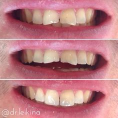 This lovely male #patient asked me if I could make his 11 & 21 (#rct a couple of months ago by my colleague) look more aesthetically appealing. Lower photo is the result after a single appointment without #waxup or #mockup. Dentistry can and should make people happier!#directcomposite #tetric #compositerestoration #aesthetic #dentistry #ilovemyjob #dentistrylife #dentistrylove #dentistrymyworld #dentist #oralsurgery #implantdentistry #Zahnarzt #стоматолог by dr.leikina Our Oral Surgery…