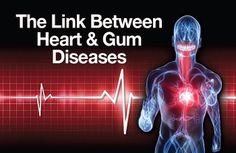 Can Bleeding Gums cause a Heart Attack