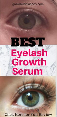 BEST EYELASH GROWTH SERUM! Check out our review of the Breakthrough Eyelash Growth Serum that can grow eyelashes longer, thicker, and fuller in as little as 2 weeks!!