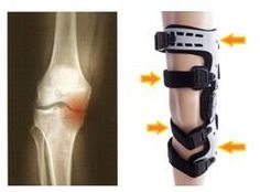 Knee Pain: Orthomen's groundbreaking innovations for knee pai. Acl Brace, Plantar Fasciitis Night Splint, Hinged Knee Brace, Ankle Surgery, Knee Osteoarthritis, Ankle Pain, Knee Pain Relief, Knee Injury, Injury Prevention