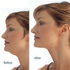 Упражнение 1. Поднимите голову так, чтобы подбородок был направлен вверх. Вытяните вперед нижнюю челюсть, чтобы почувствовать напряжение под подбородком. Держите так 10 счетов. Медленно верните голо…