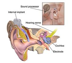 About Cochlear Implant - Cost, Procedure, Doctors