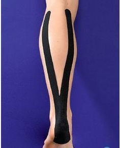 How To Strap Injuries - Achilles Tendonitis