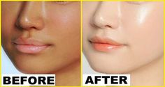 Do This For 15 Minutes Before Going To Bed, It Can Change Your Skin Complexion Overnight