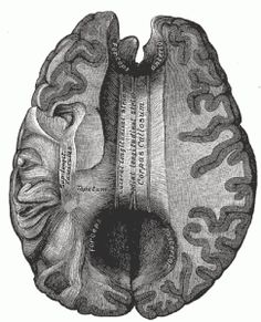 The corpus callosum, or colossal commissure, is a part of the brain that connects the right and left cerebral hemispheres and allows for communication between the two. It is the largest white matter structure in the brain. Brain Anatomy, Human Anatomy, Dysgraphia, Dyslexia, Temporal Lobe Epilepsy, Herbs For Anxiety, Corpus Callosum, Brain Illustration, White Matter