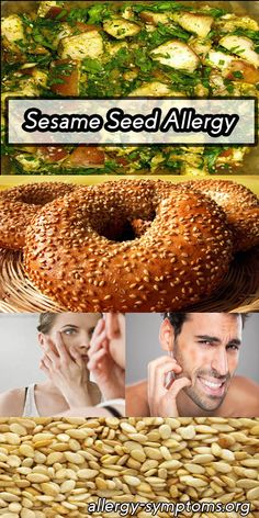 Sesame Seed Allergy Symptoms and Diagnosis - Allergy Symptoms Signs Of Food Allergies, Common Food Allergies, Sesame Allergy, Allergy Symptoms, Signs And Symptoms, Allergy Free, Get Healthy, Bagel, Seeds