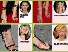 Celebrity corns on feet