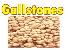 Gallstone Causes and Treatments Gallstone, Dog Food Recipes, Vegetables, Health, Health Care, Dog Recipes, Vegetable Recipes, Veggies, Salud