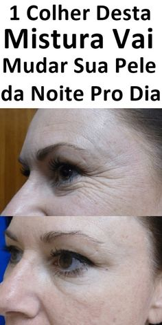 Health Fitness, Makeup, Face, Nature, 1, Women, Face Wrinkles, Natural Beauty Recipes, Natural Beauty Hacks