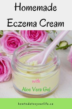 Eczema Remedies Homemade eczema cream made with 5 natural ingredients. Also get access to a FREE guide to help you eliminate eczema once and for all! Homemade Beauty Recipes, Homemade Beauty Products, Natural Products, Organic Skin Care, Natural Skin Care, Natural Beauty, Natural Face, Natural Oils, Eczema Remedies