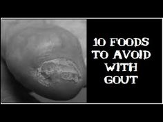 effect of low uric acid in blood gouty arthritis indian diet ways of reducing uric acid