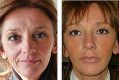 Woman Mirror Tighten Loose Skin, Pigmentation, Stem Cells, Anti Aging, Area 51, The Cure, Campaign, Health Fitness, Cream