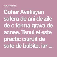 Gohar Avetisyan sufera de ani de zile de o forma grava de acnee. Tenul ei este practic ciuruit de sute de bubite, iar uneori eruptiile sunt atat de grave incat toata fata i se umfla. Ea a invatat insa sa isi accepte boala si sa traiasca cu ea, iar la evenimentele speciale reuseste sa isi schimbe ra