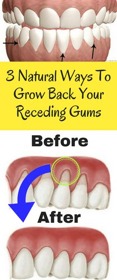 Receding gums can be caused by a number of things, but almost always point to gum disease. Poor hygiene practices, hormonal imbalances, or brushing too aggressively can all cause damage to your gums that allows bacteria to grow. Receding gums can be identified by tooth sensitivity, a large gap between the tooth and the …