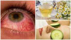 Alivia la conjuntivitis con estos 6 remedios de origen natural - Mejor con Salud