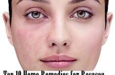 Top 10 Home Remedies for Rosacea #top10 #homeremedies #rosacea