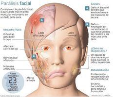 Parálisis facial, causas, síntomas, rehabilitación,acupuntura,nutrición,reiki,técnica de liberación emocional, citas :045 5524945058, La Paz ,bcs