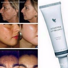 Forever Epiblanc's exclusive formula is specifically designed to brighten the complexion and even skin tone while helping to diminish the appearance of dark spots. Gently evens skin tone Brightens the complexion Diminishes appearance of dark spots Forever Epiblanc® is most effective when applied directly to blemishes or dark spots on the skin. Use of Forever Living's Aloe Sunscreen, in combination with Forever Epiblanc, is recommended during the daytime.