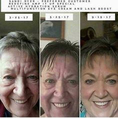 WINNING at aging!! These beauties are turning back the clock!! What will your #beforeandafter look like? #whatareyouwaitingfor #realresults #multimedtherapy #60daymoneybackguarantee