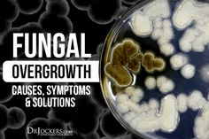 Fungal Overgrowth: Causes, Symptoms & Solutions - DrJockers.com Candida Fungus, Candida Diet, Candida Overgrowth Symptoms, Liver Detoxification, Organic Acid, Chronic Stress, Anti Inflammatory Diet, Health Articles, Gut Health