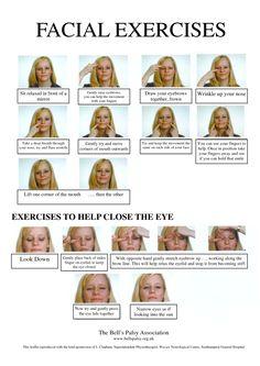 Exercise of facial paralysis