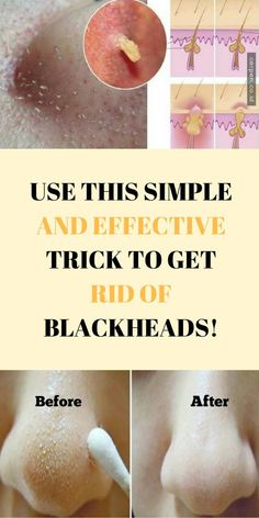 #health #beauty #skincare #blackheads #removal