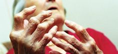 Existen cantidades grandes de suplementos que afirman ser efectivos para el dolor de artritis, pero puede realmente ayudar a mejorar su dolor de la artritis?.