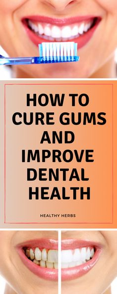 Numerous researches are saying nearly of American adults and more than over the age of 65 have gum disease also known as periodontists. It is linked not only to bad breath but also for more serious conditions like heart disease and cardiovascular disease. Gum Health, Dental Health, Oral Health, Dental Care, Health Care, Teeth Health, Oral Surgery, Dental Problems, Best Oral