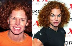Carrot top plastic surgery before and after carrot top plastic carrot top plastic surgery before and after m4hsunfo