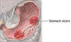 Click here to find out how you can Heal Stomach Ulcers Naturally.