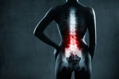 The Big Diabetes Lie - Spinal Cord Stimulation Therapy May Have Risks For Diabetic Neuropathy - Doctors at the International Council for Truth in Medicine are revealing the truth about diabetes that has been suppressed for over 21 years. Hip Pain, Back Pain, Spine Pain, Pilates, Examen Clinique, Spinal Cord Stimulator, Spine Surgery, Craniosacral Therapy, Chronic Pain