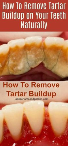 How To Remove Tartar Buildup on Your Teeth Naturally. Dental plaque is a biofilm or mass of bacteria that grows on surfaces within your mouth. #teethcleaning #dentist #tarterbuildup
