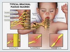 typical brachial plexus injuries