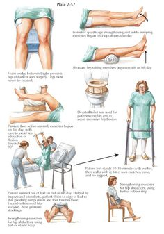 REHABILITATION AFTER TOTAL HIP REPLACEMENT Quadriceps Strengthening, Hip Extension Exercise, Quadriceps Femoris, Isometric Exercises, Musculoskeletal System, Adaptive Equipment, Hip Replacement, After Surgery, Hip Muscles