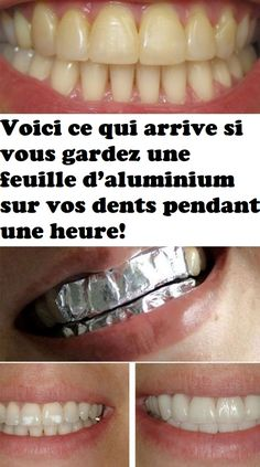 Get whiter teeth in just 3 minutes using these simple tricks that involve aluminum foil, coconut oil, baking soda and turmeric! Get whiter teeth in just 3 minutes using these simple tricks that involve aluminum foil, coconut oil, baking soda and turmeric! Teeth Whitening Remedies, Natural Teeth Whitening, Whitening Kit, Oily Hair Remedies, Acne Remedies, Skin Whitening, Teeth Care, Skin Care, Get Whiter Teeth