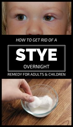 A stye is very painful and unsightly, not to mention that your eyelids will swollen and you won't be Eye Stye Remedies, Natural Cough Remedies, Holistic Remedies, Natural Cures, Herbal Remedies, Health Remedies, Remedy For Stye Eye, Natural Healing, Natural Remedies
