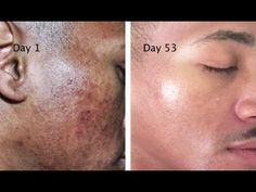 The-Stains-Spots-And-Hyperpigmentation Melanine disorder Turmeric powder+lemon juice 15 minutes, do not expose to sun