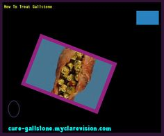 How To Treat Gallstone 160203 - Cure Gallstone