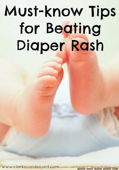 Must-know tips for beating diaper rash! Some of these tips are so helpful #ad #endthered