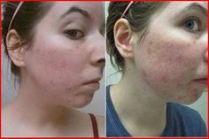 Acne ---we have the solution with Seacret products and you can get them online for 60 % off www.seacretdirect.com/suemarie