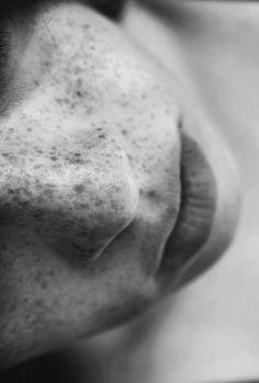 Freckles...reminds me of my sister n.n