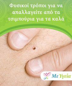 Φυσικοί τρόποι για να απαλλαγείτε από τα τσιμπούρια για τα καλά   Τα τσιμπούρια είναι μικρά έντομα που ανήκουν στην ίδια #οικογένεια με τις αράχνες, τα ακάρεα και τους σκορπιούς. Εκτός του ότι είναι δυσάρεστα παράσιτα, φέρουν και μια πληθώρα από αρρώστιες. Αυτά τα αρθρόποδα #αναρρόφησης αίματος συνήθως βρίσκονται στους κήπους, στις γούνες των #κατοικιδίων και στα εκτρεφόμενα ζώα των αγροκτημάτων, όπως άλογα και αγελάδες, τα οποία. #ΦυσικέςΘεραπείες