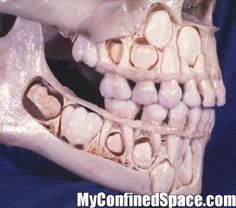 This is what a child's skull looks like before it has lost its baby teeth.