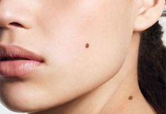 There are hundreds of natural treatments when it comes to getting rid of an unwanted mole from your physique. Natural Mole Removal, Skin Moles, How To Remove, How To Apply, Quites, Natural Treatments, Nasa, Physique, Home Remedies