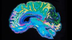 One more brain myth bites the dust: There's no Male Brain, or Female Brain; There's Human Brain