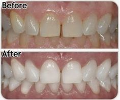 Best teeth whitening products blue light teeth whitening,laser teeth whitening cost teeth whitening laser treatment,what is the best teeth whitening treatment where to go for teeth whitening. Teeth Whitening Remedies, Natural Teeth Whitening, Remedies For Tooth Ache, Unwanted Facial, Teeth Bleaching, Cosmetic Dentistry, Health And Beauty, Cellulite, Health And Wellness
