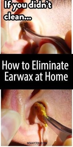 The right way to use hydrogen peroxide for earwax removal earwax is a substance present in the inner ear it has the purpose to protect solutioingenieria Images