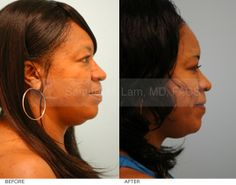 Lip Reduction (Corrective and Ethnic) before and after patient photos from Dallas Plastic Surgery Specialist Dr. Lip Surgery, Female Lips, Plastic Surgery Photos, Fat Transfer, Lower Lip, Profile View, African American Women, Side View, Ethnic